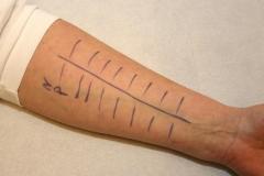 5allergietest-unterarm